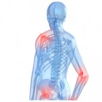 Osteotron